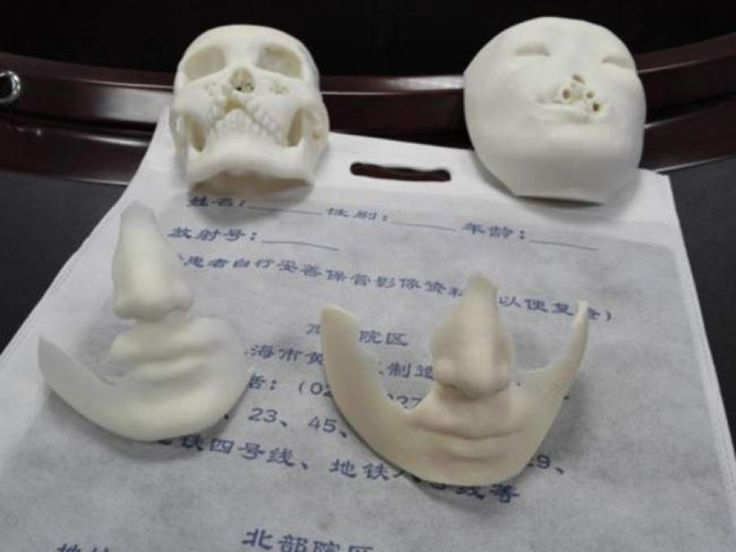 Chinese doctors use 3D printing to prepare for facial reconstruction surgery