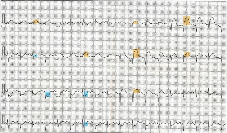 Electrocardiography in myocardial infarction - Wikipedia