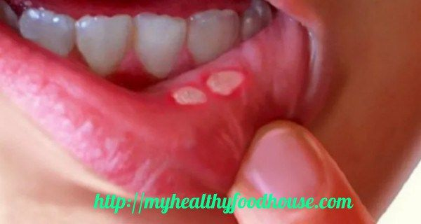 Mouth ulcers hurt a lot and irritate us. They are open mouth sores inside, white or pink and red. They are on cheek insides, lips, above teeth, under tongue and mouth floor too.  MANY REASONS MAKE THIS; Minor – most common for 80% of people, they heal in week or 10 days Major- large ulcers …