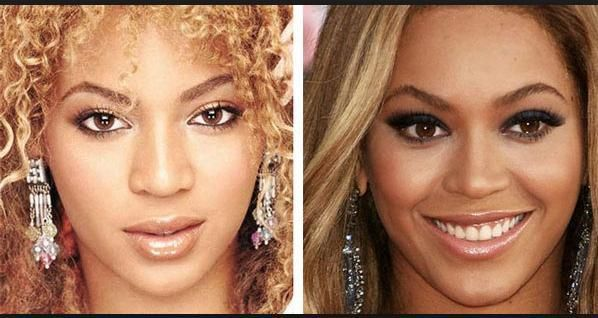 Ex Destiny's Child Member Exposes Beyonce's Plastic Surgery Past