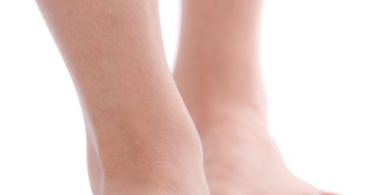 Tratamento para inchaço no tornozelo. Tornozelos inchados são geralmente chamados de edemas, que são causados pela existência de fluidos retidos no corpo, especialmente ao redor dos tornozelos, pés e pernas. Esse inchaço pode ocorrer por muitas razões comuns, incluindo dieta rica em sódio e carboidratos, trauma na área, retenção de água e gravidez.