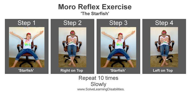 Moro Reflex Exercises