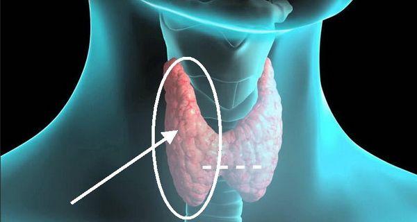 Un articol de Razvan      In zilele noastre, problemele cu tiroida sunt din ce in ce mai des intalnite. Oamenii prezinta tot felul de simpt...