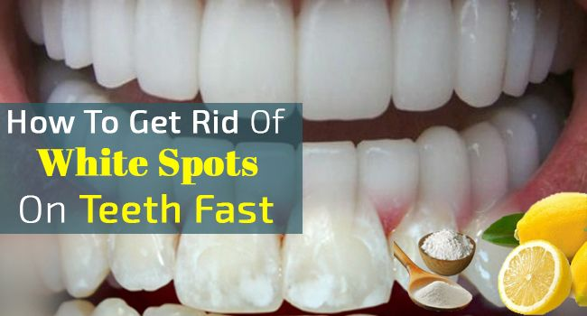 e15d5c8e184f729bde75b60e6faf307c - How To Get Rid Of White Stain On Teeth