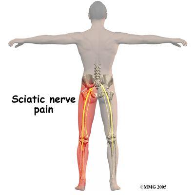 legs nerves syndroms | Snapping Hip Syndrome (Iliopsoas Tendinitis/ Tendonitis) Treatment ...