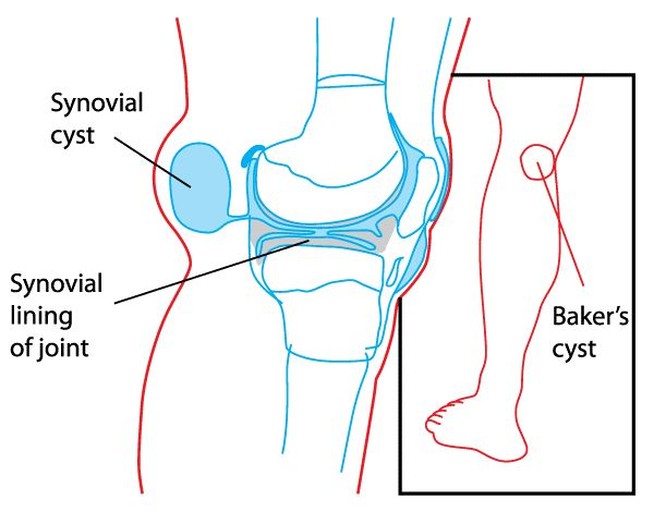 A Baker cyst is swelling caused by fluid from the knee joint protruding to the back of the knee. Baker cysts are common and can be caused by virtually any cause of joint swelling. A Baker cyst may not be associated with knee pain and tightness behind the knee, especially when the knee is extended or fully flexed.