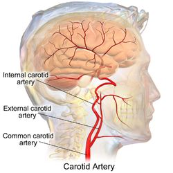 The common carotid artery and its main branches