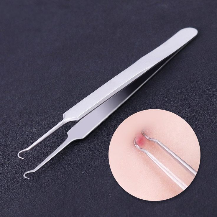 1PC Blackhead Tweezers Eyelash Extension Nipper Anti Acid Steel Needle Tweezers Removal Acne Face Care Curved Straight Nail Tool
