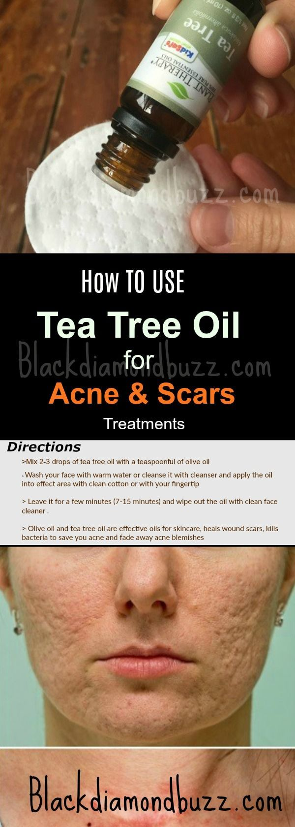 How to use Tea Tree for Acne and Scars Treatments at Home