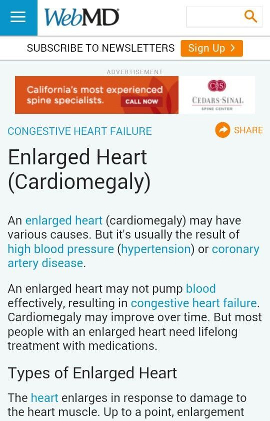Enlarged Heart (Cardiomegaly)