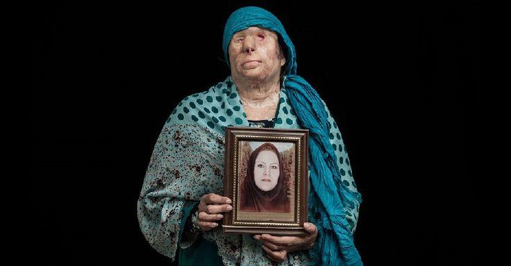 Impactantes fotografías que denuncian los ataques con ácido en Irán