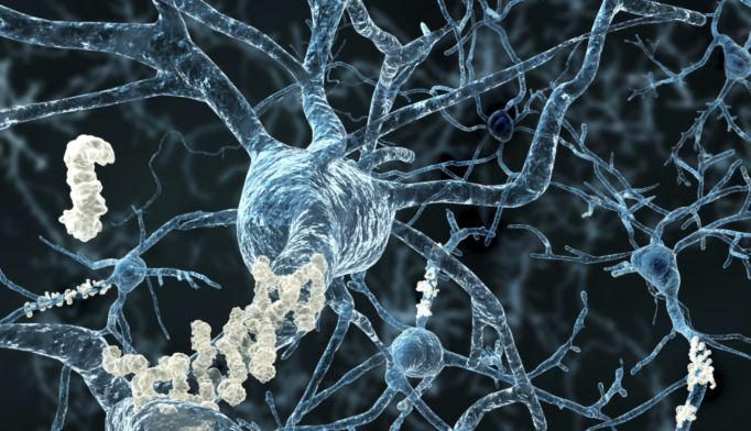 Tau protein should be target of new treatments for Alzheimer's disease.