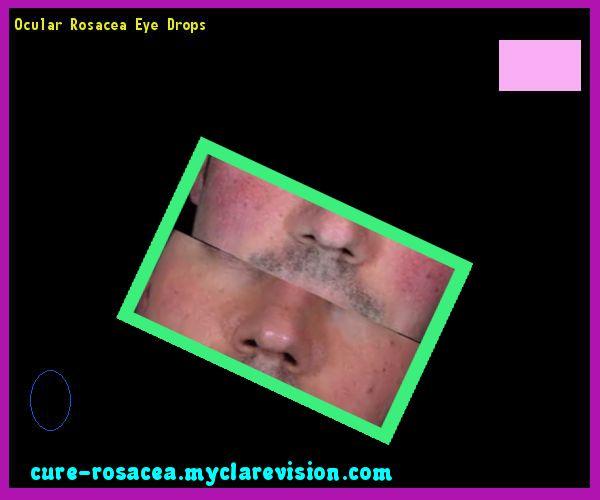 Ocular Rosacea Cure Natural