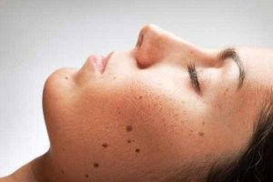 Dark spots on skin Causes