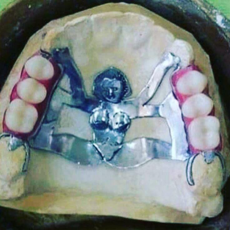 внимание смешные картинки для зубных техников один пострадавших