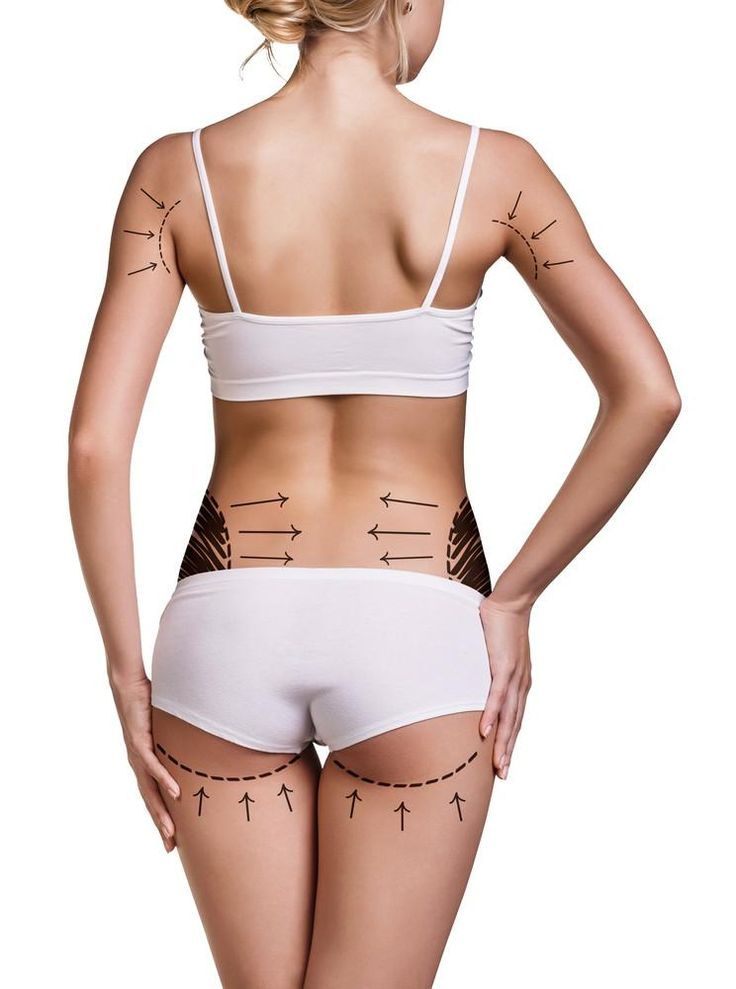 FAT REDUCTION training using cryolipolysis, RF and ultrasound