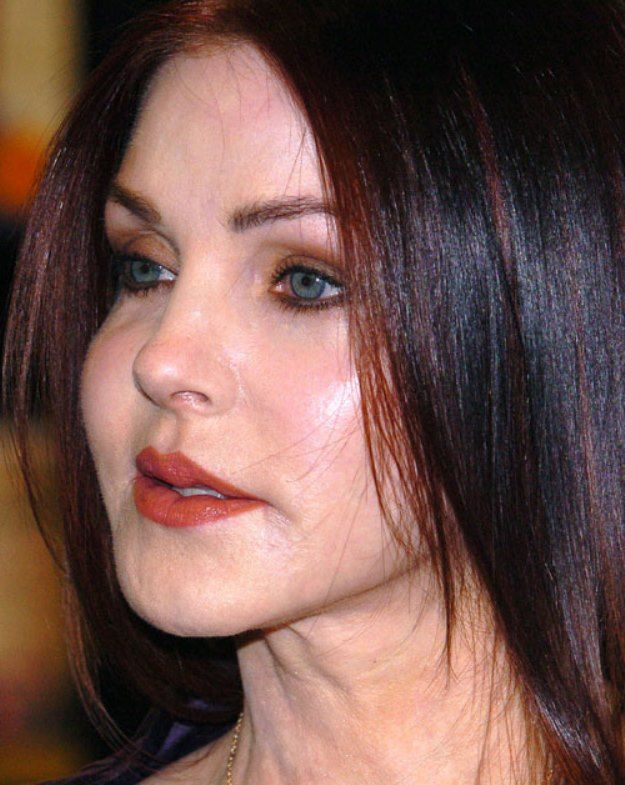 How Well Did Priscilla Presley Plastic Surgery Go?: Priscilla Presley Plastic Surgery What Happened – Plastic Surgery Nightmare -