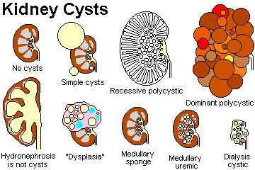 medullary sponge kidney ultrasound | ... thata progressive kidney pyramids medullary sponge kidney definition