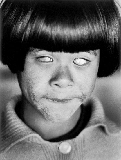 Christer Strömholm, blind girl, hiroshima, 1963