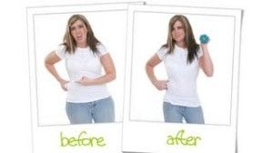 surgical weight loss emmc