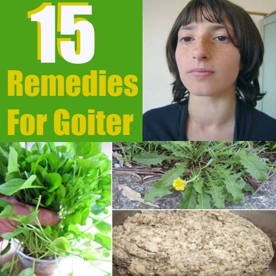 how to treat goiter at home
