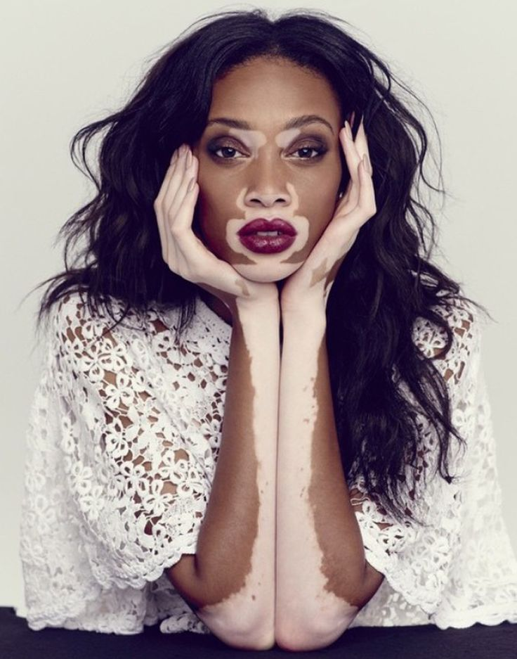 Be (Im)Perfect Winnie Harlow www.yohanasant.es