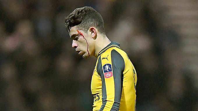 Zweigligist Preston North End lieferte Gabriel und dessen Arsenal-Teamkollegen einen harten Pokalfight.