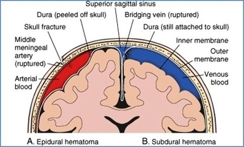 Epidural hematoma (most often involves temporoparietal region or middle meningeal artery) vs subdural hematoma. Both are medical emergencies & should be diagnosed via noncontrast head CT and surgically decompressed.