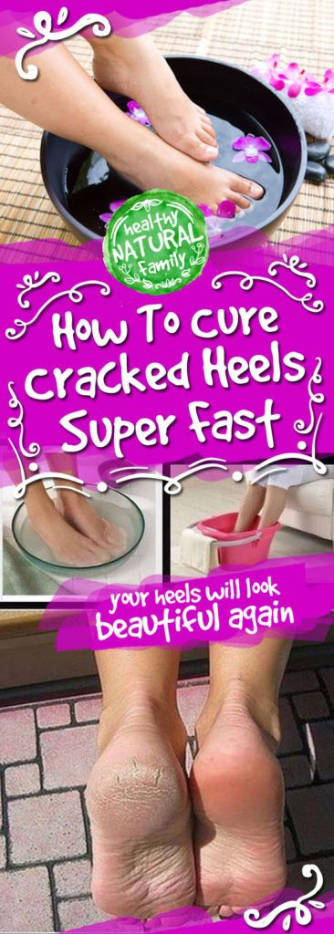 In this post we will tell you how can you cure cracked heels super fast and in just few days you heels will look beautiful again. Step 1 – Warm water treatment You will need: Luke warm water 2 spoo…