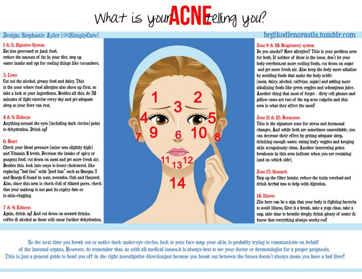 What is Your Acne Telling You?