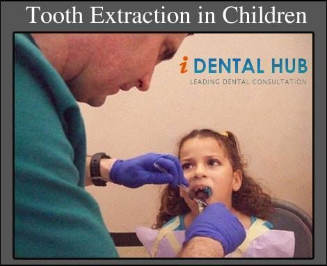 Honorable Dental Care Tips Heal Cavities #toothwhitening #TeethWhiteningProducts…