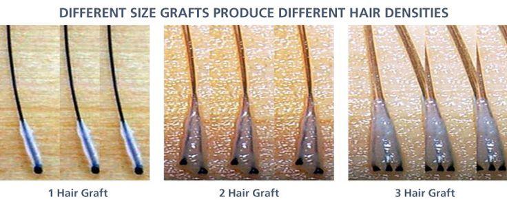 https://s-media-cache-ak0.pinimg.com/736x/e1/78/40/e1784062e8244091a046f4aece897bca.jpg Plucked Hair Follicle Bulb