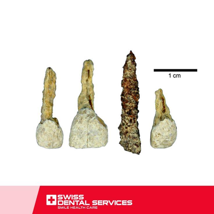 Saviez-vous que la première tentative de remplacement d'une dent est survenue à l'année  600? www.swissdentalservices.com/fr