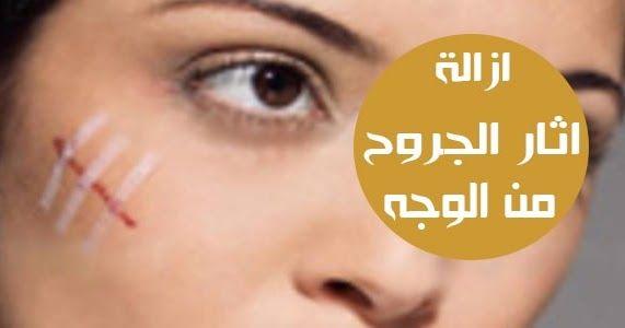 ازالة اثار الجروح من الوجه بالاعشاب تتعرض البشرة إلى العديد من العوامل المختلفة التي تؤثر على مظهرها وجمالها وخصوصا العوامل العرضية التي Nose Ring Nose Rings