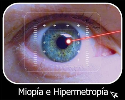 #ÓpticaGeométrica | #Miopía e #Hipermetropía - Estudiemos un defecto del ojo que se llama Miopía, el cual consiste que en muchas personas el globo ocular aumenta de tamaño y crece, es decir que la retina ahora esta mas lejana. Sigue aprendiendo… http://ava.akademeia.ufm.edu/home/?publicacion=miopia-e-hipermetropia
