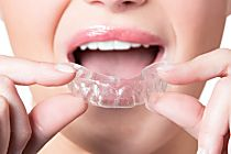Think You Need $5,000 to Align Your Teeth? Think Again  http://reviewscircle.com/health-fitness/dental-health/natural-teeth-whitening/