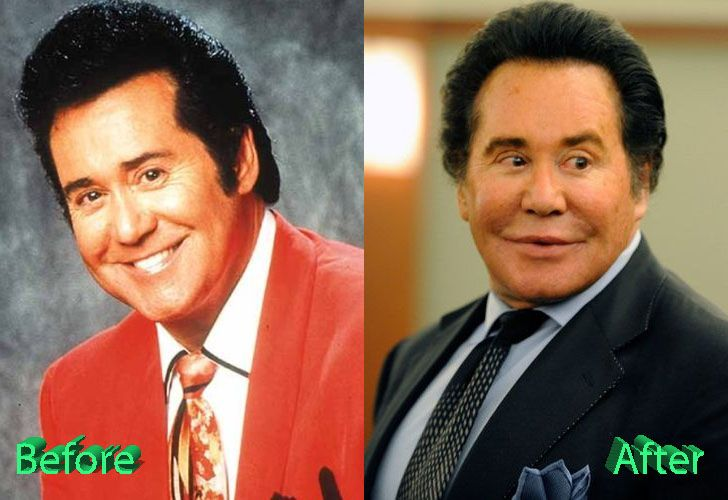 wayne-newton-plastic-surgery-before-and-after