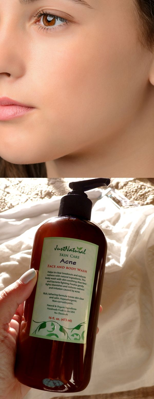 Acne Face & Body Wash l I have tried every type of otc acne product that I could find on the market but none ever cleared up my skin.  My boyfriend bought this acne face & body wash with the hope of making my skin better. I started to use this just to make him happy. I always believed that medications were that only things that could work. I was wrong, completely wrong. My skin is clear and acne free now. I am reading more and more about natural cures and how really amazing they can be.