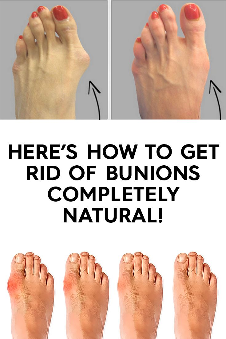 Heres how to get rid of bunions completely natural with