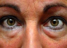 Remédios para desinflamar os olhos inchados