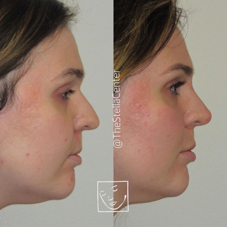 Nonsurgical Rhinoplasty Before and After Profile view in