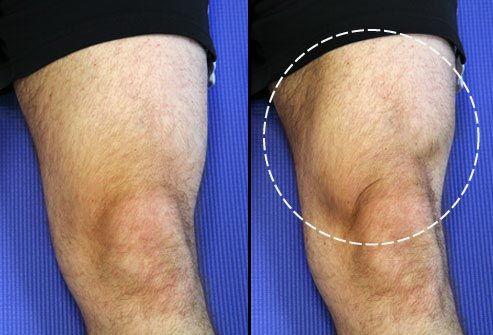 Esercizi per il dolore al ginocchio: Quad Set
