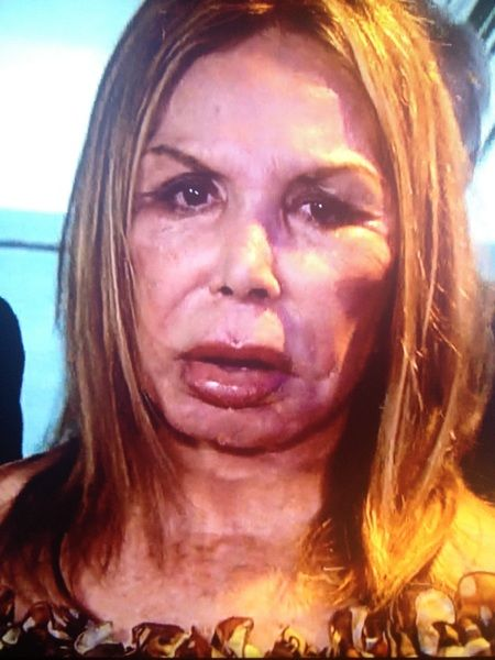 377 Best Images About Botox Gone Bad Celebs With Out Make