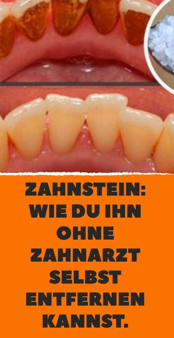 Zahnstein: wie du ihn ohne Zahnarzt selbst entfern…