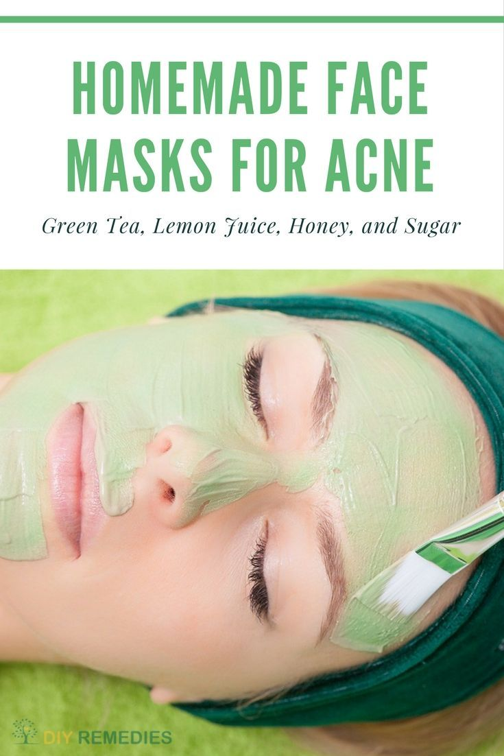 Green Tea Face Masks for Acne    Natural DIY Homemade Face Masks to Cleanse your Skin    Here are some best ways of applying face masks to cleanse your skin and thereby to clear acne and its scars.  #DIYRemedies