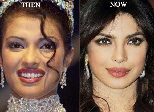Celebrity Priyanka Chopra Plastic Surgery Before After - http://www.celeb-surgery.com/celebrity-priyanka-chopra-plastic-surgery-before-after/?Pinterest