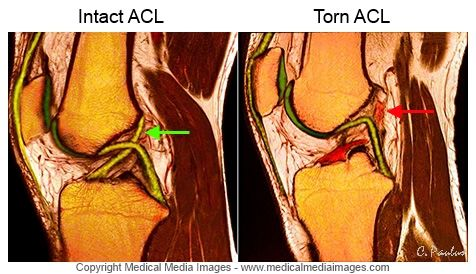 A Color MRI Medical Image of the Knee showing a normal ACL Ligament and an ACL Tear.A novel, advanced visual tool to see and understand Anatomy, Disease, and Surgery created by Medical Media Images. Created by Medical Media Images. Ideal for Websites and Publications. http://www.medicalmediaimages.com/annotated-color-mri-knee-acl-ligament-tear-before-after/497