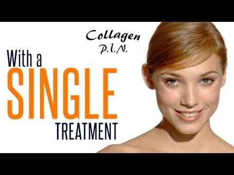 Collagen P.I.N. - Percutaneous Collagen Induction Needling - YouTube