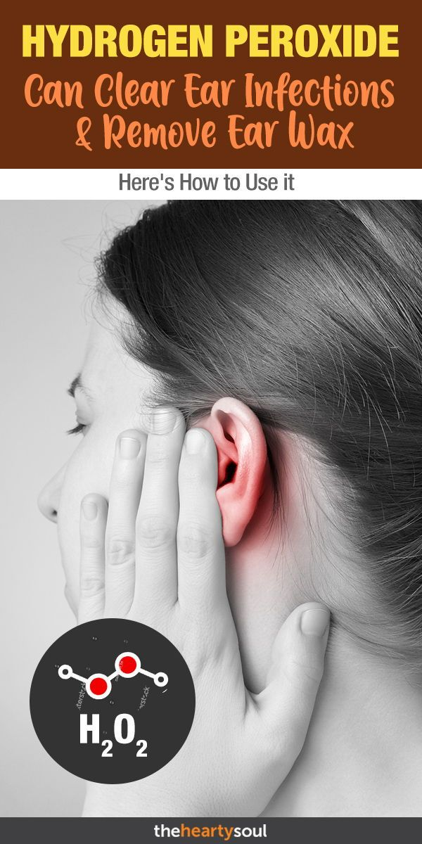 Hydrogen Peroxide Can Help Clear Ear Wax But What About Ear Infections Ear Infections Hydrog Peroxide For Ear Infection Ear Infection Ear Infection Remedy
