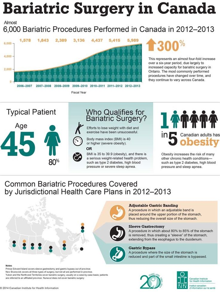 Pin by Lynn Ferguson on Pre-Gastric Bypass Surgery (With ...